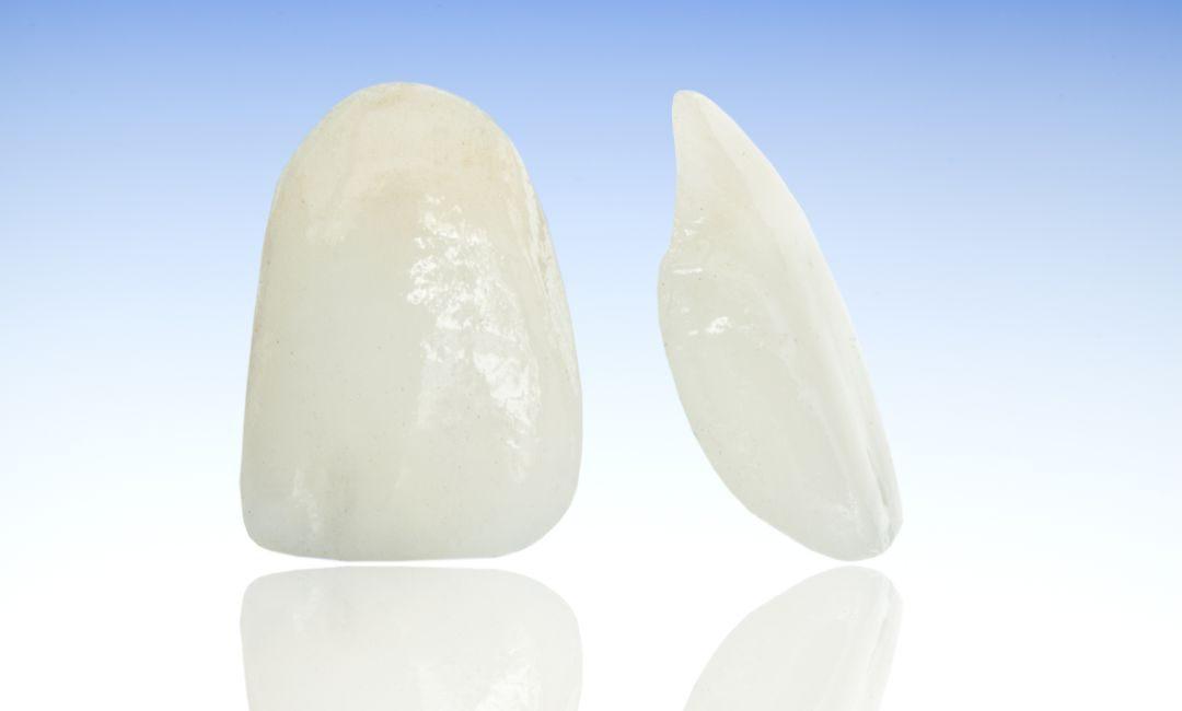 Zubne krunice vs. zubne ljuskice